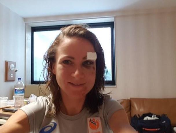 Selfie Van Vleuten toont verwondingen val