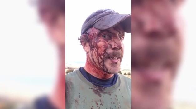 VIDEO Man overleeft liefst twee aanvallen van grizzlybeer