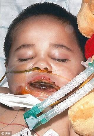 Zijn moeder keek enkele seconden niet, maar nu zal Ayman (6) waarschijnlijk nooit meer kunnen praten