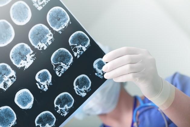 Wetenschappers Maastricht UMC : oorzaken epilepsie ontdekt