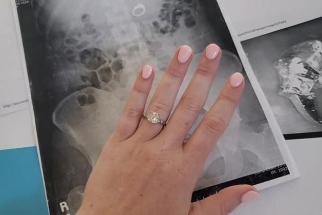 Vrouw slikt verlovingsring in tijdens nachtmerrie: 'Ik werd wakker met een lege vinger'