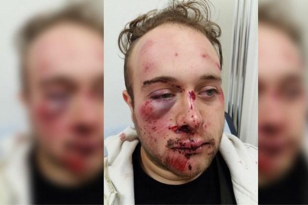 Roermondenaar in elkaar geslagen: vader zoekt daders