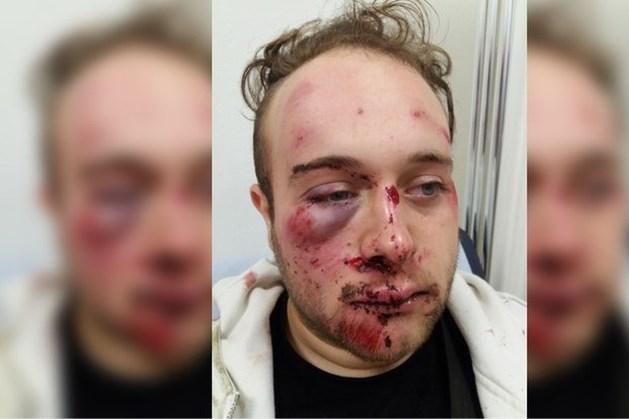 Oorzaak letsel van Brian (21) nog altijd een raadsel: politie zoekt getuigen