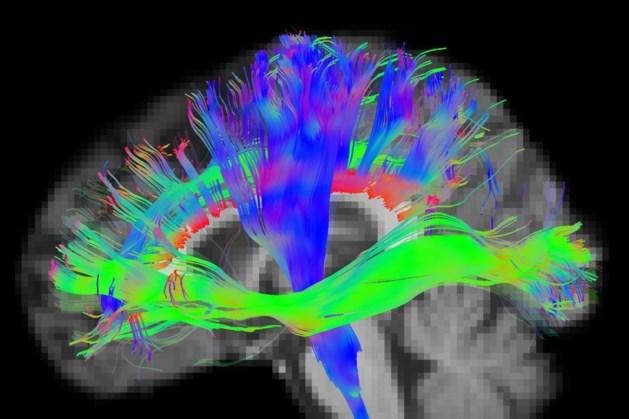 Hersenen worden sneller ouder door diabetes