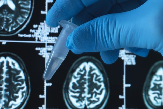Biogen maakt vaart met alzheimermedicijn