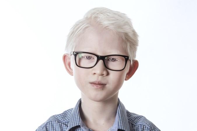 Deze Limburgers hebben albinisme: 'We zijn niet anders, dan anderen'