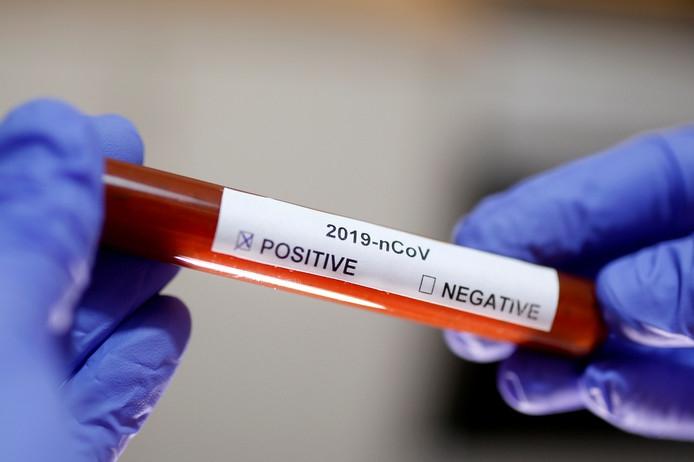 Coronavirus Nu In Alle Duitse Deelstaten De Limburger Mobile