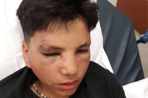 Jongen (14) zwaar mishandeld en beroofd van dure Gucci-pet