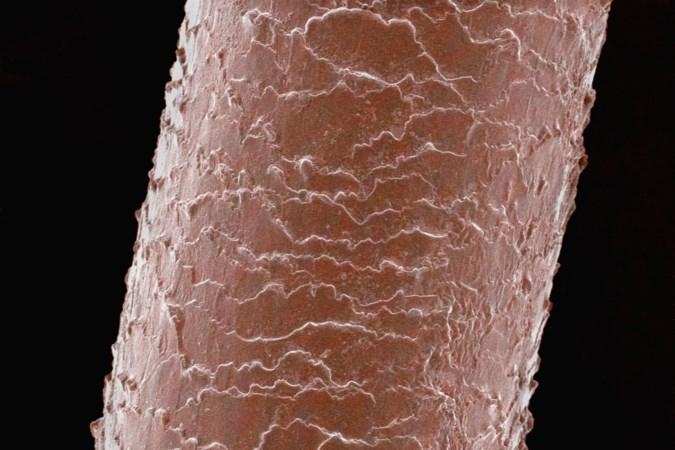 Limburgse vondst: haartje verraadt of borstimplantaat lekt