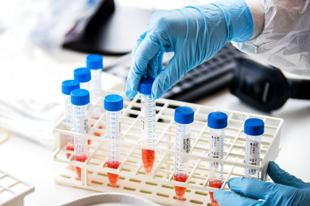 RIVM meldt 2914 coronabesmettingen en 6 sterfgevallen