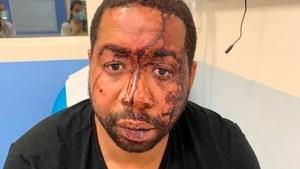 Twee agenten in hechtenis voor mishandeling zwarte man in Parijs